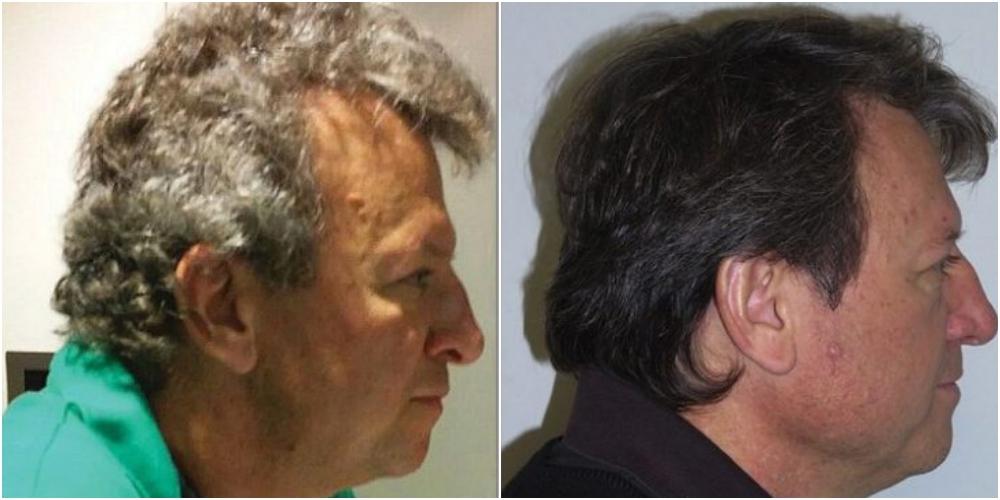 抗癌剤の副作用で髪が若返る