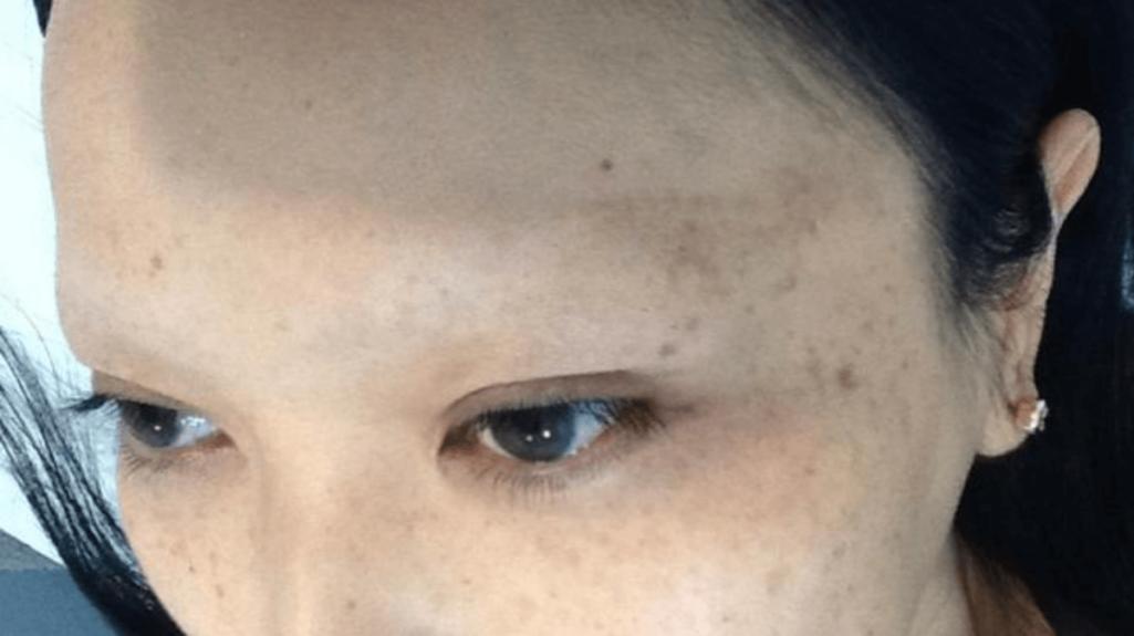 眉毛タトゥーのアートメイク失敗談