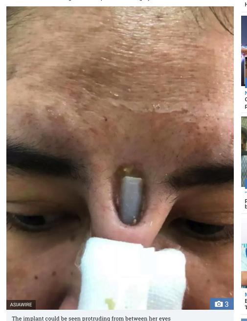鼻の整形失敗でシリコンが飛び出た女性