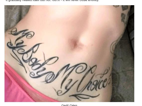 身体改造でヘソをくり抜いた女性
