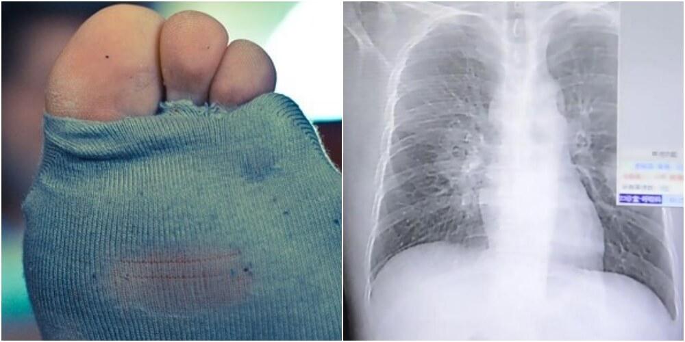 汚靴下を嗅ぎすぎた匂いフェチの中国人が肺感染症で死にかける