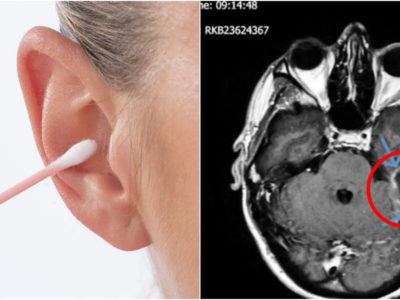 綿棒の耳掃除が危険な理由