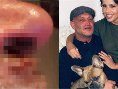 コカイン依存性25年で鼻がグチャグチャの男