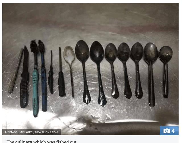 異食症患者の体内からナイフ