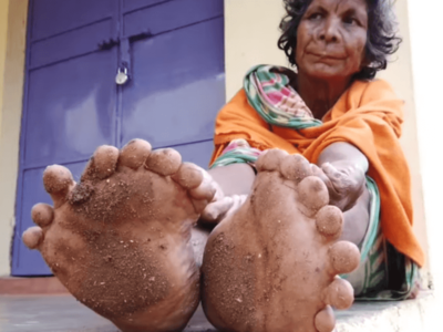 世界一指の多い多指症の女性