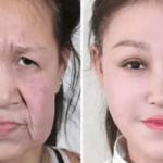 老化の奇病を患った少女が整形手術