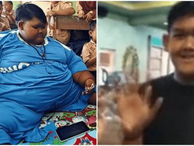 世界一の肥満少年が劇的ダイエットに成功