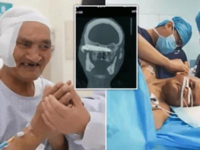 26年間頭にナイフが刺さったままの中国人男性