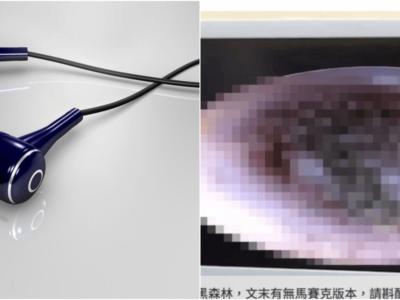 長時間のイヤホンで耳の中にカビが生えた中国人少年