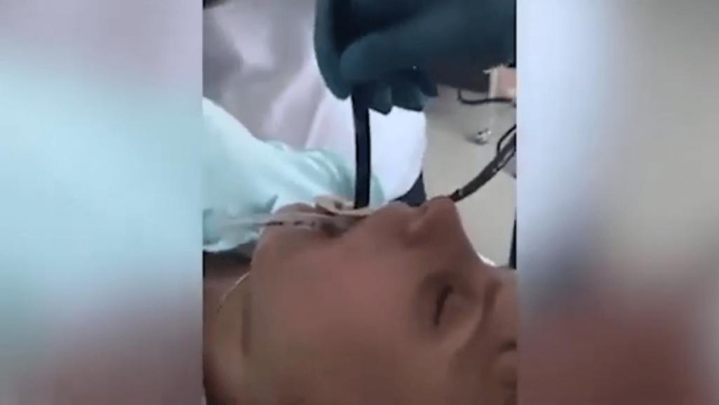喉からヘビを摘出する衝撃の手術動画