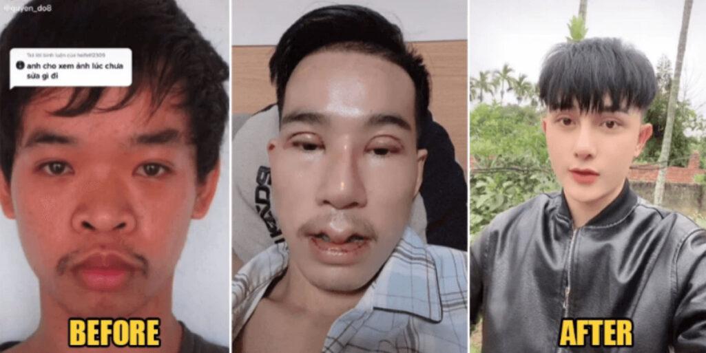 就活のために顔を変えた整形イケメン