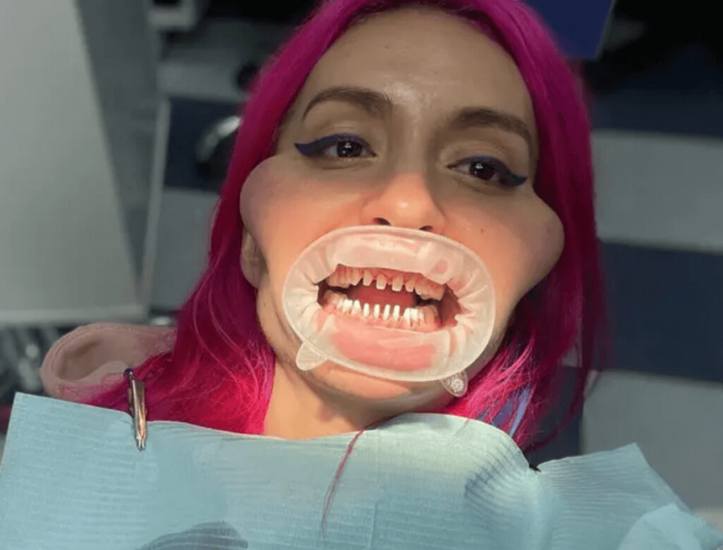 世界一巨大な頬骨を持つ女性