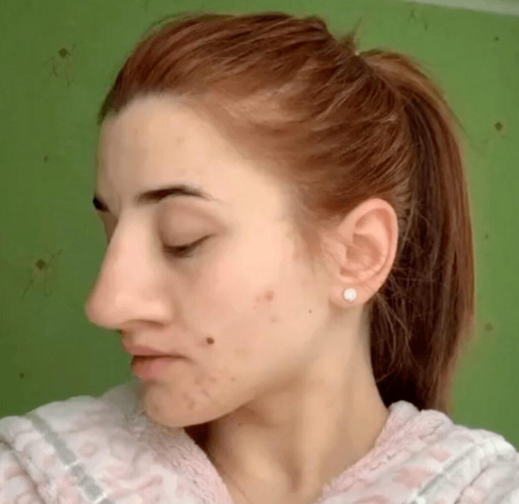 大きな鼻を小さくする整形手術ビフォーアフター