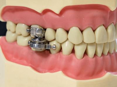 奥歯に強力磁石でダイエット