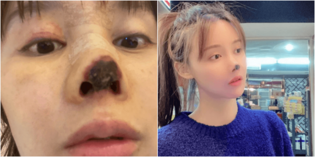 鼻の整形手術のミスで黒く壊死した中国女優