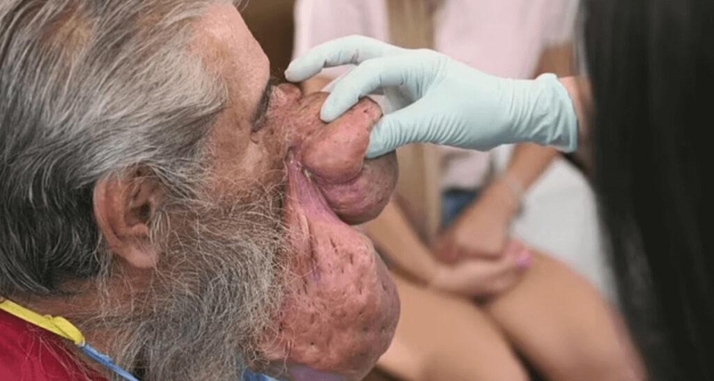 ニキビ悪化で鼻がテング級に巨大化