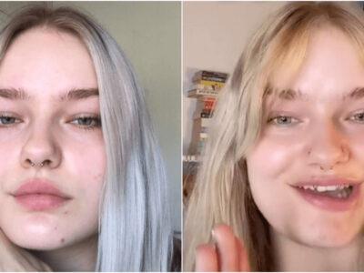 ボトックス注射失敗で顔が歪んだ女性